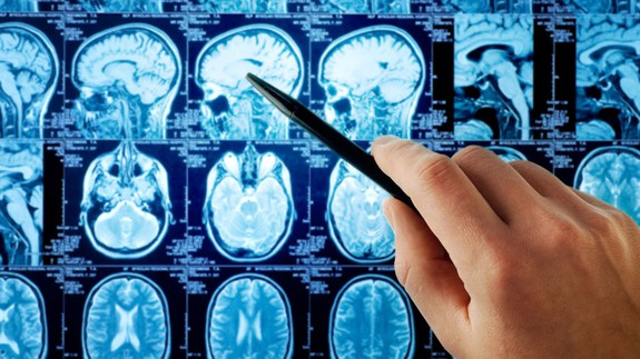 Brain scans help predict the stories we're most likely to share