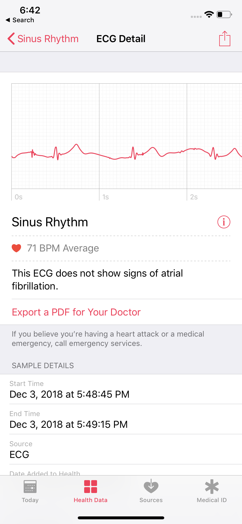 What an ECG will look like in the Health app on iOS.