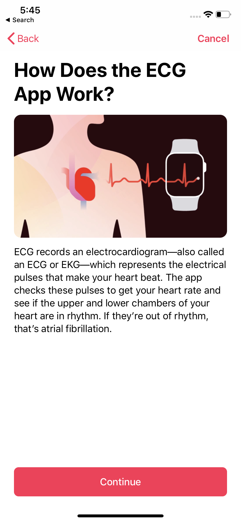 Apple makes it easy to understand what an ECG is with plain English.